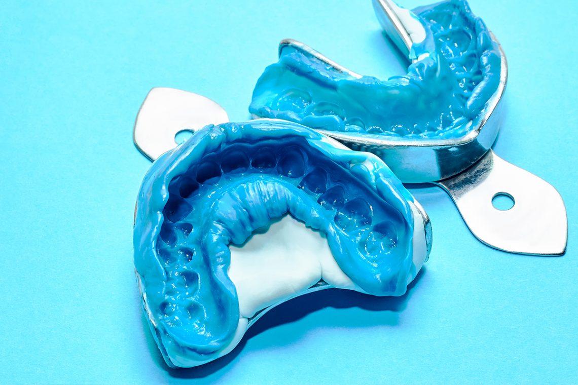 dental bite 01